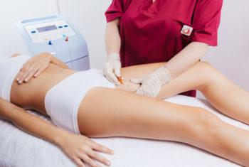Tratamiento Corporal Carboxiterapia corporal